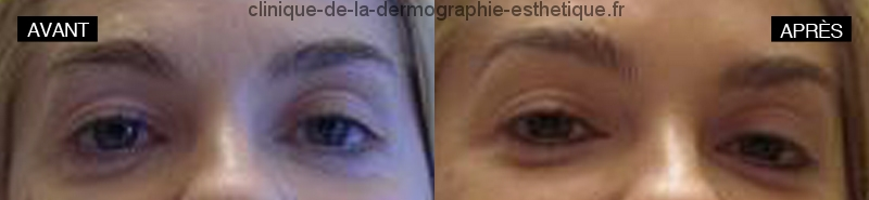 Maquillage permanent eyeliner