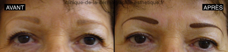 Maquillage permanent sourcils